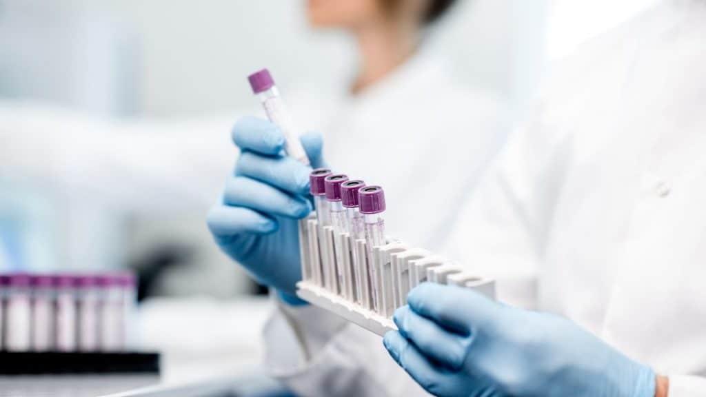 Bluttest zuhause Labor